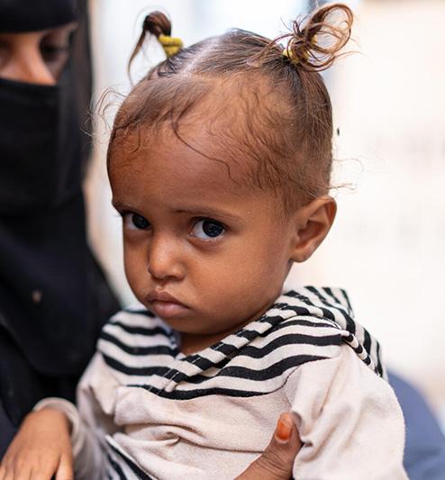 [예멘 위기] 최악의 인도주의 위기를 겪는 예멘, 미래를 빼앗긴 어린이들